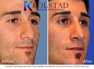 Middle Eastern Rhinoplasty San Diego