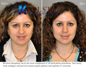 revision-rhinoplasty-san-diego-1