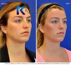 revision rhinoplasty san diego