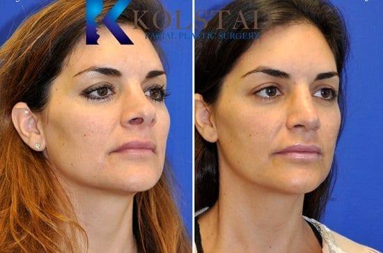 Nose Surgery San Diego