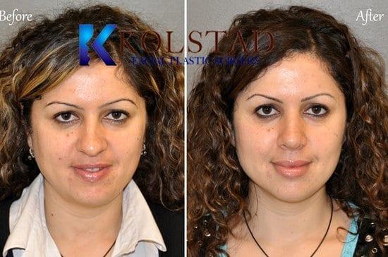 San Diego Nose Surgery