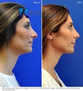 complex revision nose surgery