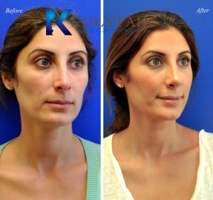 Middle Eastern Nose Job Before & After San Diego