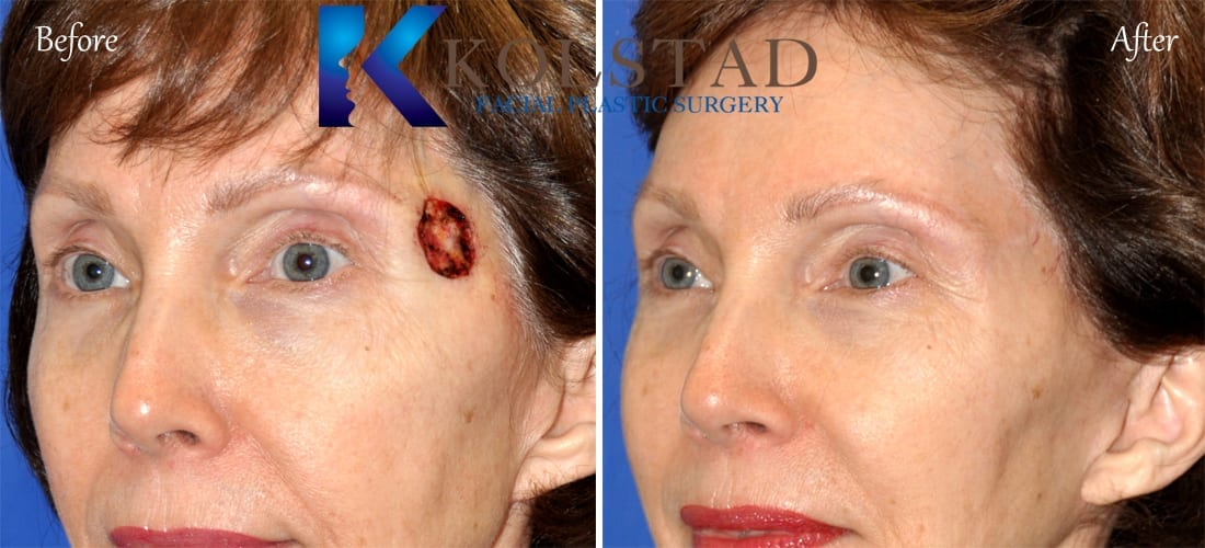 Earlobe Repair Mole Removal Amp Additional Services Before