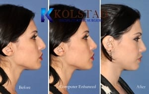 computer enhanced rhinoplasty