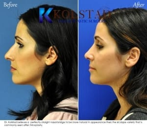 ethnic rhinoplasty san diego 123 copy