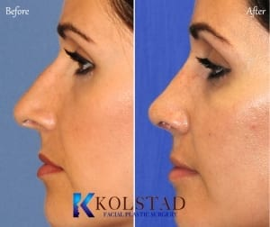 ethnic rhinoplasty san diego 124 copy