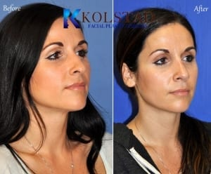 ethnic rhinoplasty san diego 125 copy