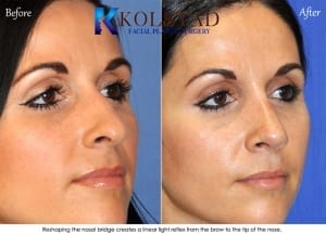 ethnic rhinoplasty san diego 125a copy