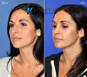 ethnic rhinoplasty san diego 126 copy