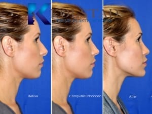 hispanic rhinoplasty 228
