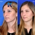 rhinoplasty san diego 5130 copy