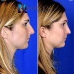 rhinoplasty san diego 5131 copy