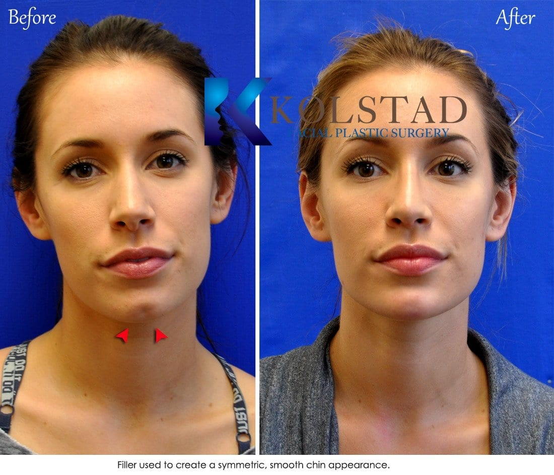 liquid chin augmentation san diego 1 copy