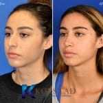 mexican rhinoplasty