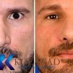 san diego best revision rhinoplasty