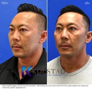 asian eyelid surgery results