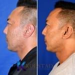 san diego asian eyelid surgery