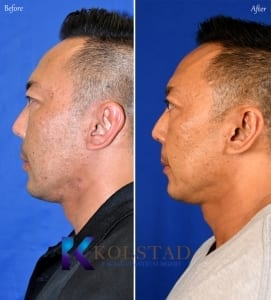 san diego asian eyelid surgery