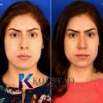 nose job san diego