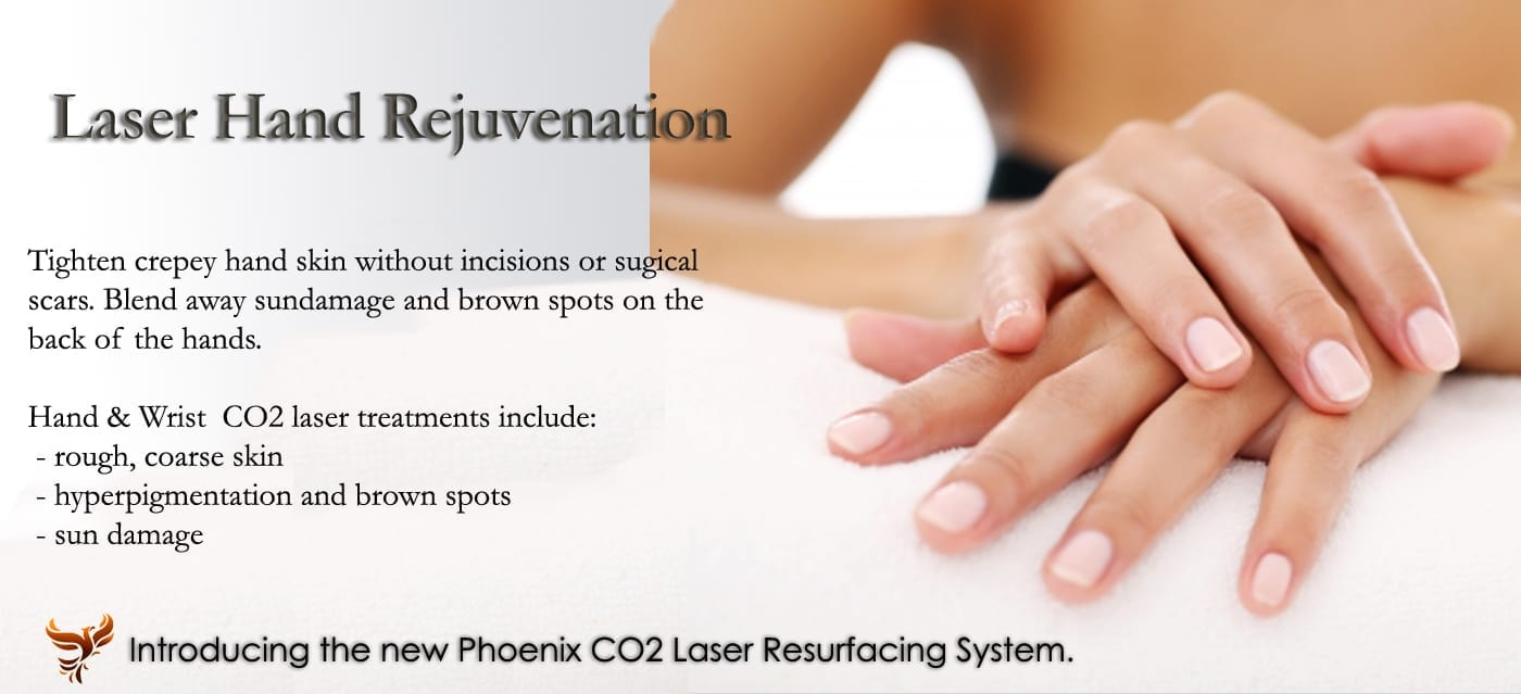 laser hand rejuvenation