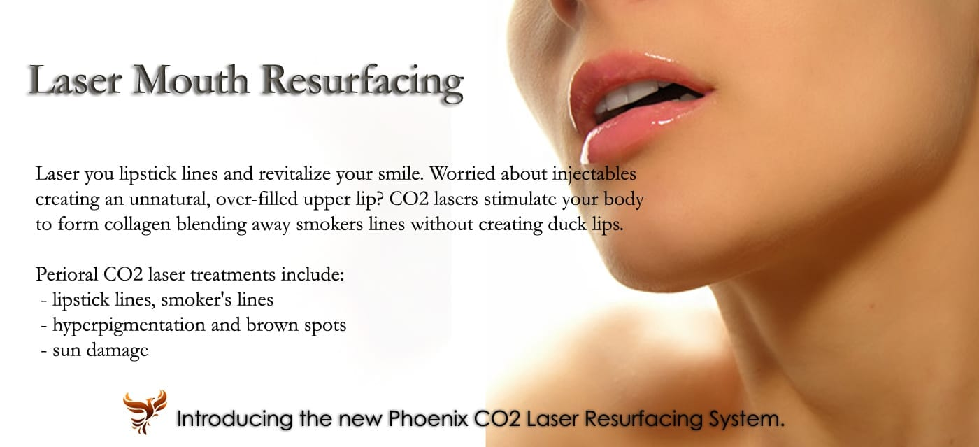 laser mouth resurfacing
