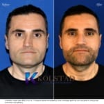 crooked nose rhinoplasty