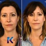natural rhinoplasty results