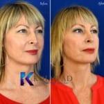 blepharoplasty san diego