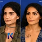 san diego middle eastern rhinoplasty