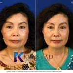 san diego asian nose job surgery