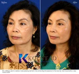 san diego asian rhinoplasty