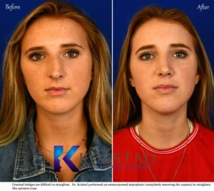crooked nose rhinoplasty san diego
