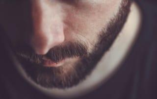 Beard Transplant San Diego, CA