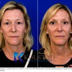 cosmetic eyelid surgery san diego